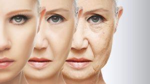 """Как и почему появляются морщины? Топ-7 причин преждевременного """"старения"""" кожи. 0.jpg.pagespeed.ce . MFMVpOajr 300x169 - клиника VIdnova"""