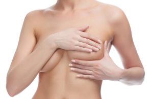 Как убрать растяжки на груди: косметические средства или операция? 002 300x195 - клиника VIdnova