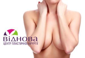 Увеличение груди: почему я боюсь? Часть 1 01 1.jpg.pagespeed.ce .o0 ebm2l t 300x204 - клиника VIdnova