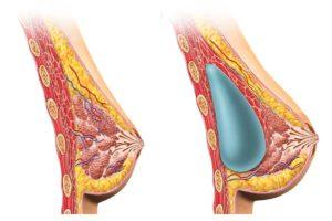 Увеличение груди: почему я боюсь? Часть 1 02.jpg.pagespeed.ce .ONSgEjMy9x 300x200 - клиника VIdnova