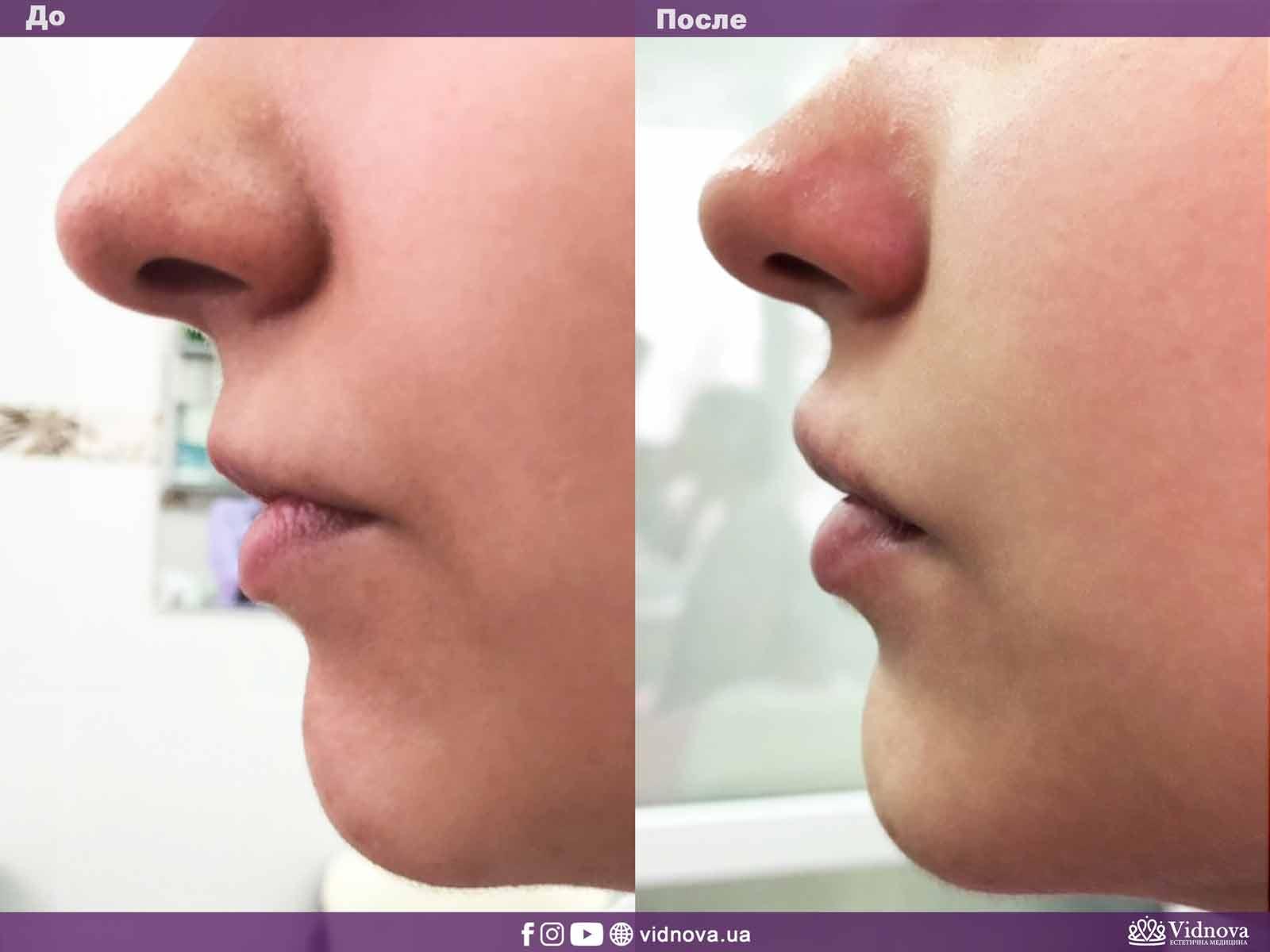 Увеличение губ: Фото До и После - Пример №12-2 - Клиника Vidnova