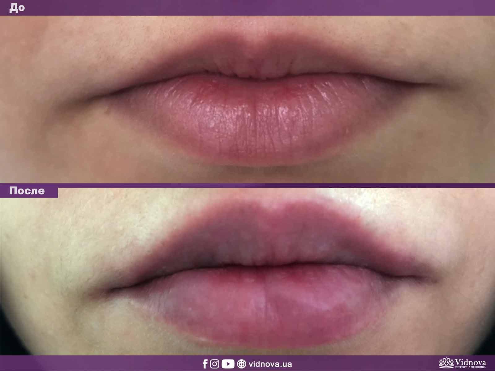 Увеличение губ: Фото До и После - Пример №12-1 - Клиника Vidnova