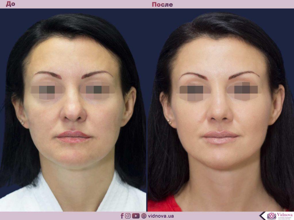 Пластика носа (ринопластика) 1 1 1 1024x768 - клиника VIdnova