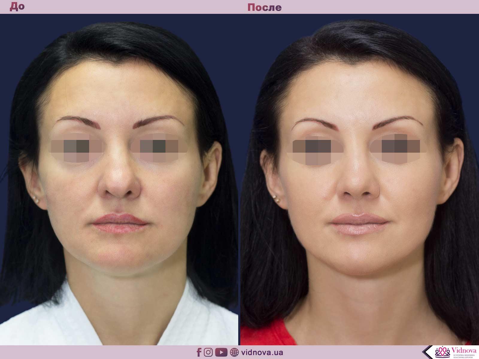 Ринопластика: Фото ДО и ПОСЛЕ - Пример №7-1 - Клиника Vidnova