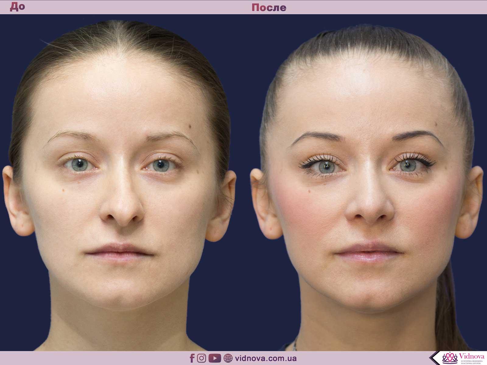 Ринопластика: Фото ДО и ПОСЛЕ - Пример №10-1 - Клиника Vidnova