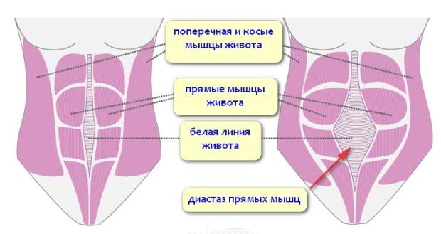 Лечение диастаза мышц живота при помощи абдоминопластики 1 11 - клиника VIdnova