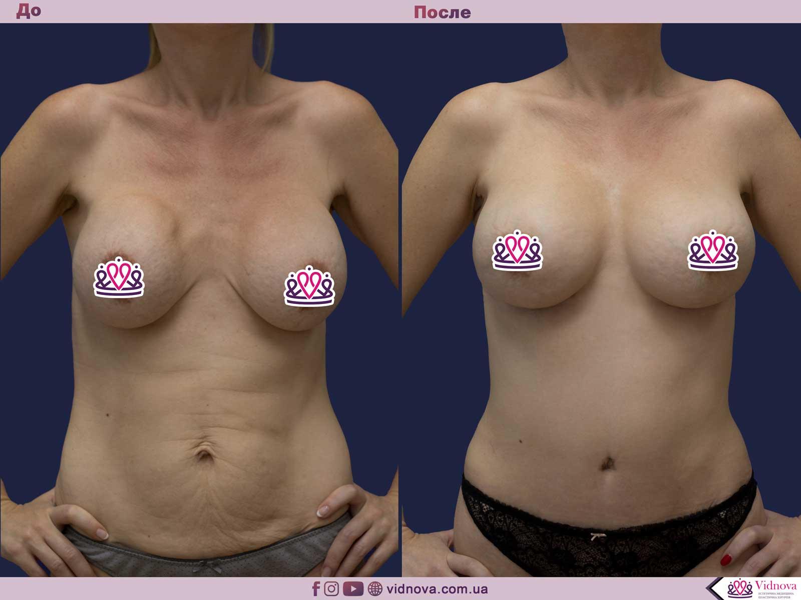 Совмещенные операции: Фото До и После - Пример №9-1 - Клиника Vidnova
