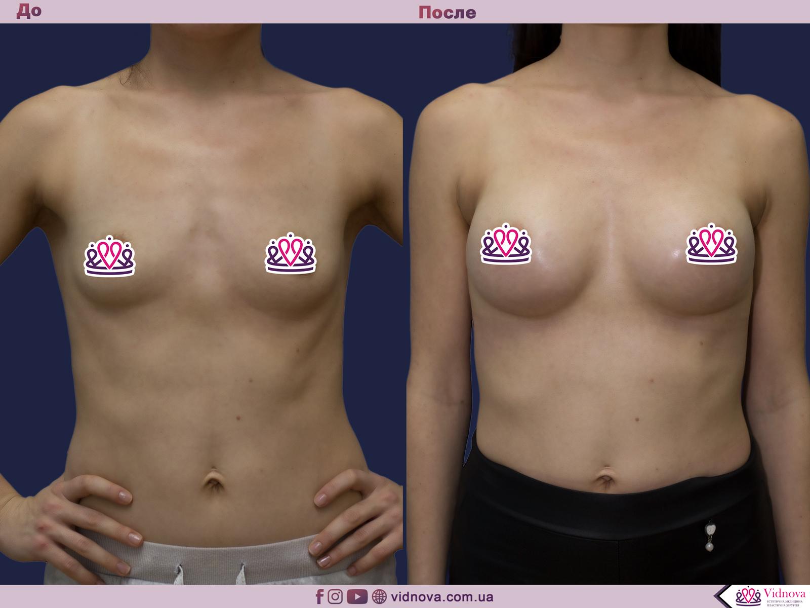 Увеличение груди: Фото ДО и ПОСЛЕ - Пример №79-1 - Клиника Vidnova