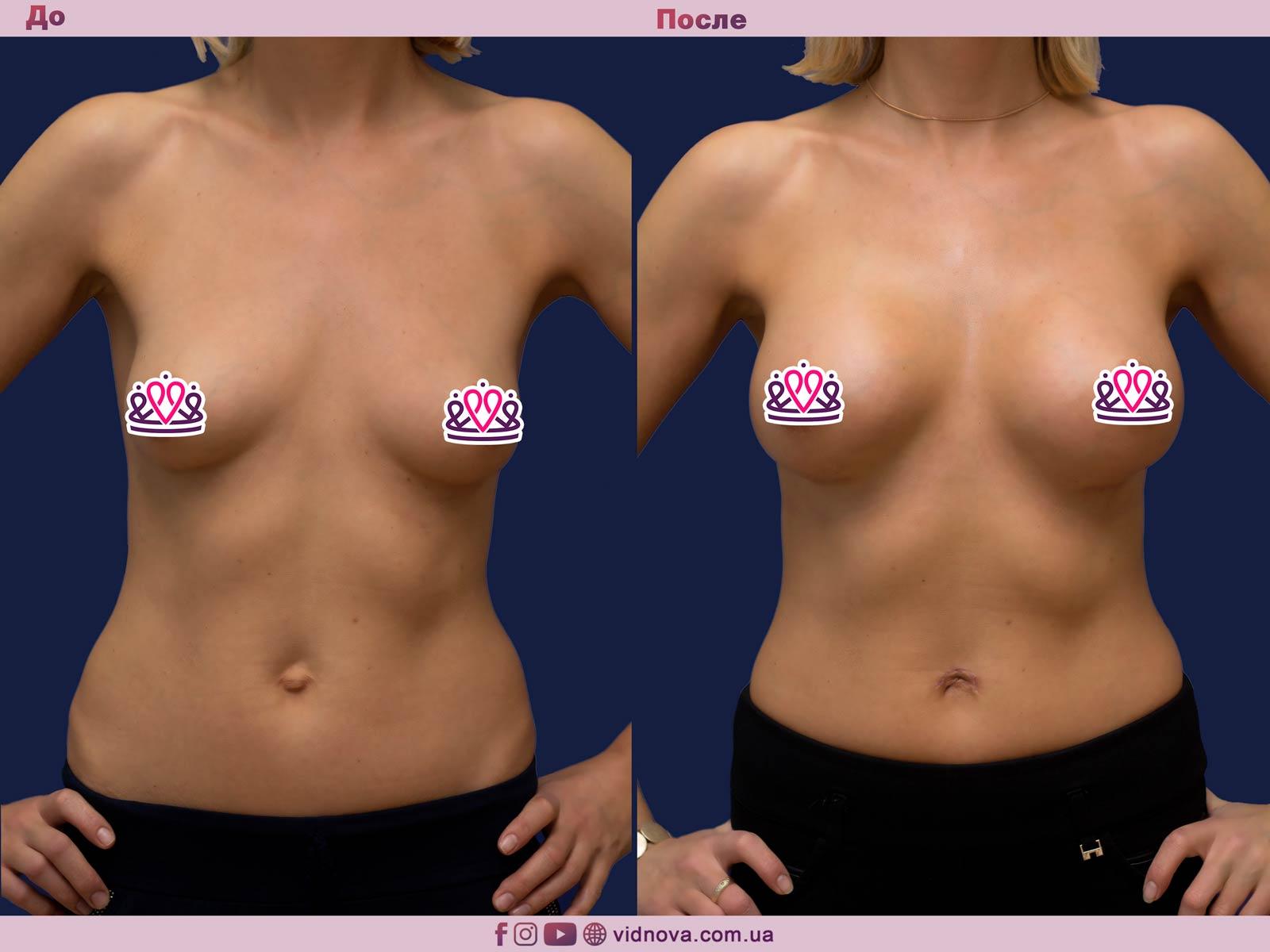 Увеличение груди: Фото ДО и ПОСЛЕ - Пример №75-1 - Клиника Vidnova