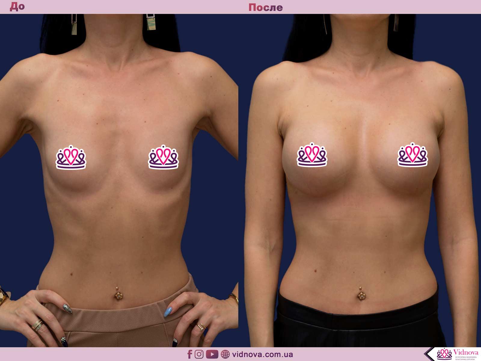 Увеличение груди: Фото ДО и ПОСЛЕ - Пример №80-1 - Клиника Vidnova