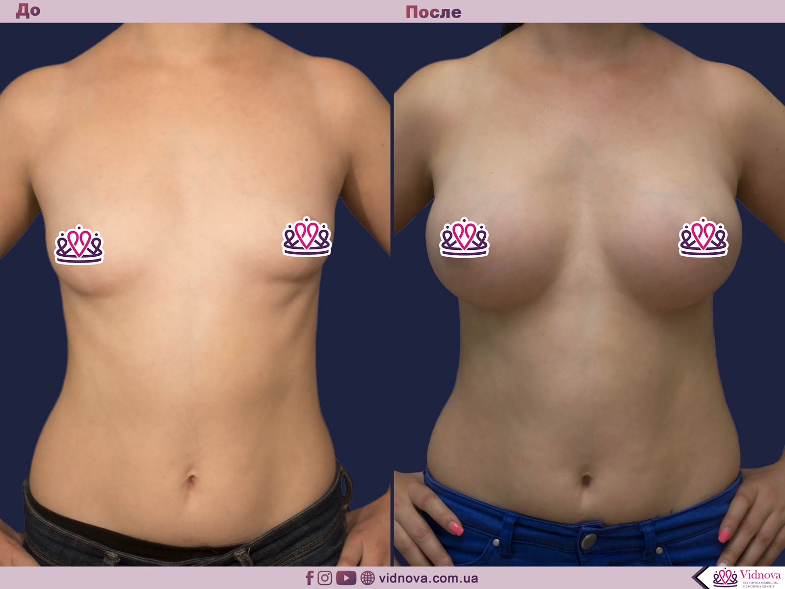 Увеличение груди: Фото ДО и ПОСЛЕ - Пример №78-1 - Клиника Vidnova