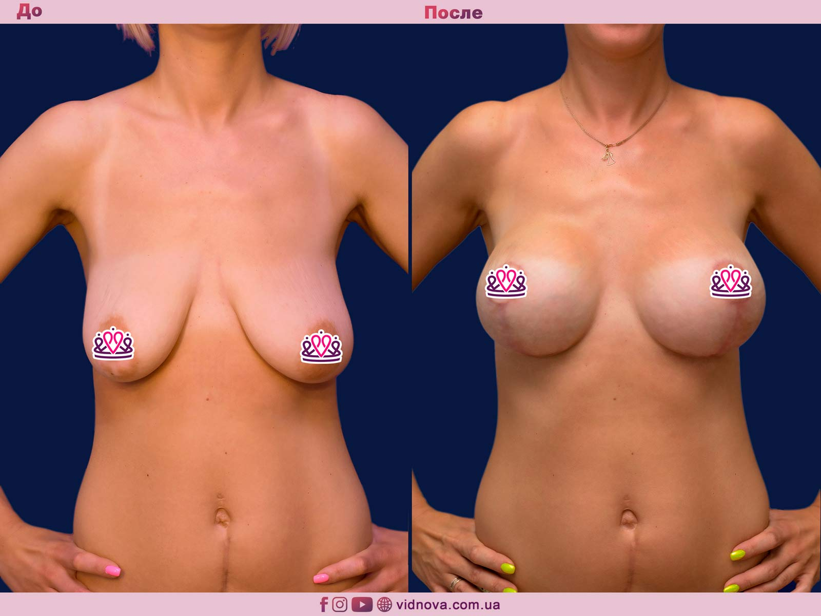 Подтяжка груди: Фото ДО и ПОСЛЕ - Пример №25-1 - Клиника Vidnova