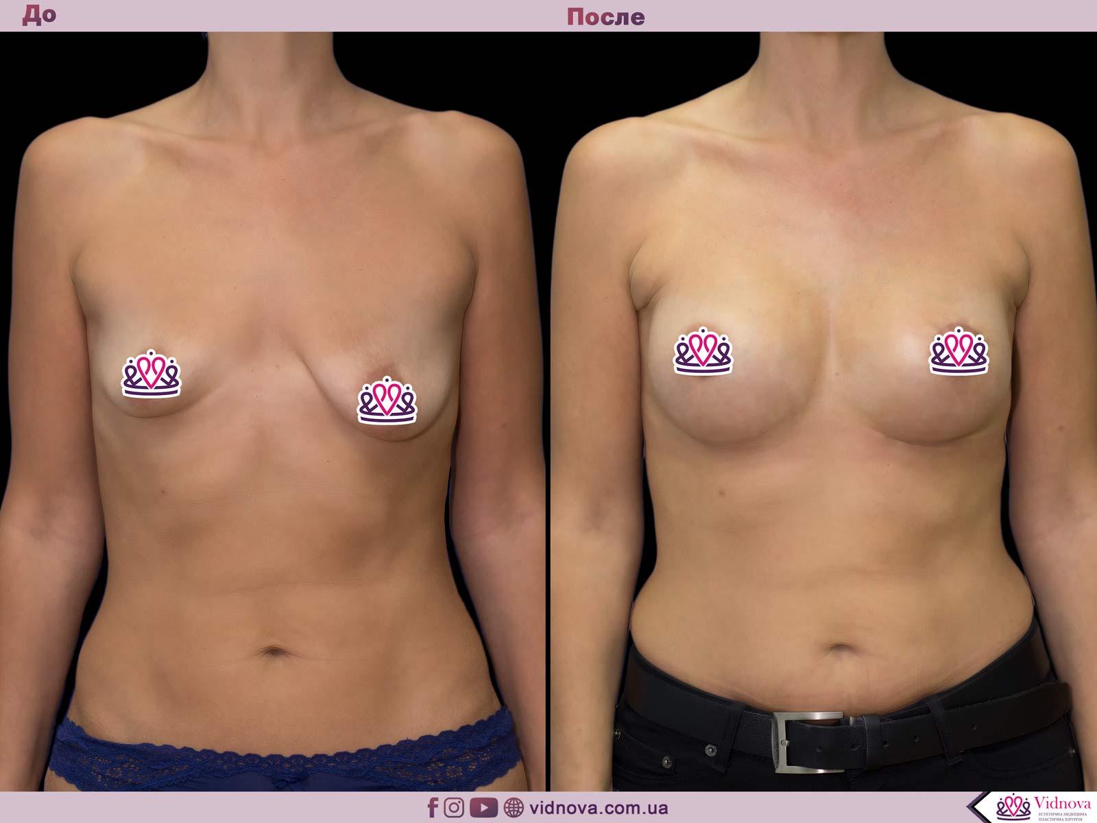 Подтяжка груди: Фото ДО и ПОСЛЕ - Пример №19-1 - Клиника Vidnova