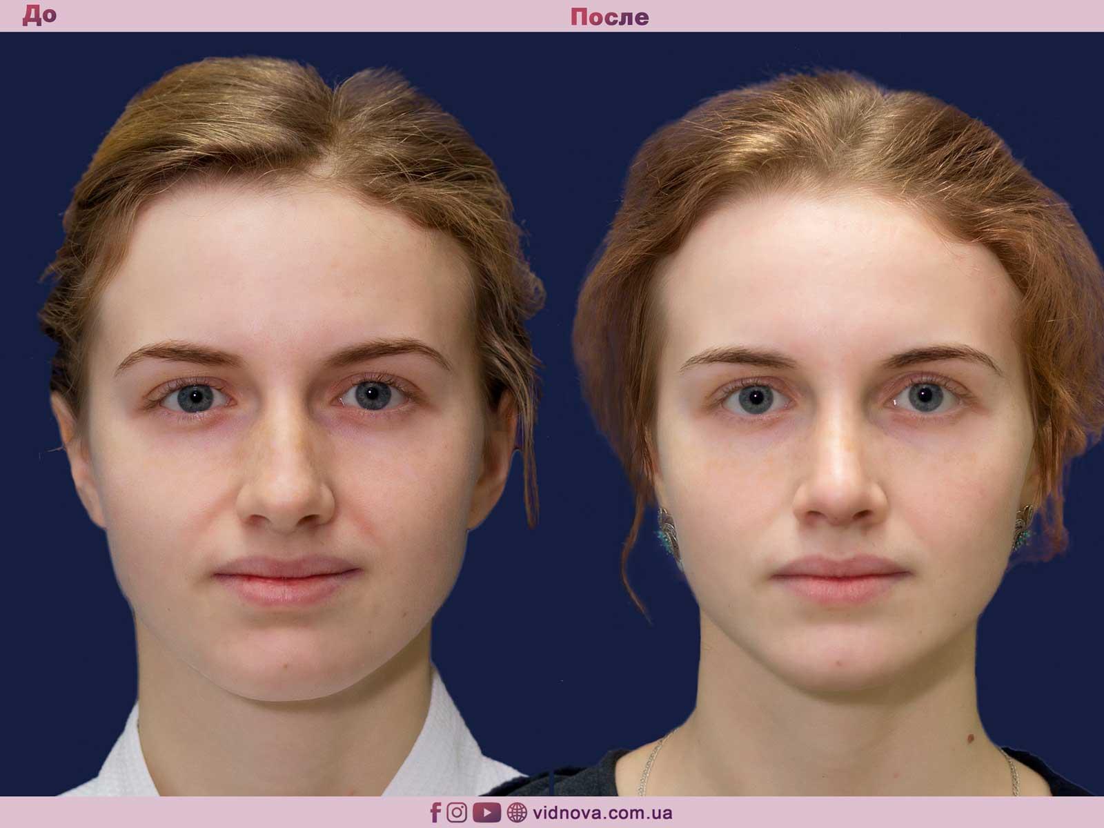 Ринопластика: Фото ДО и ПОСЛЕ - Пример №9-1 - Клиника Vidnova
