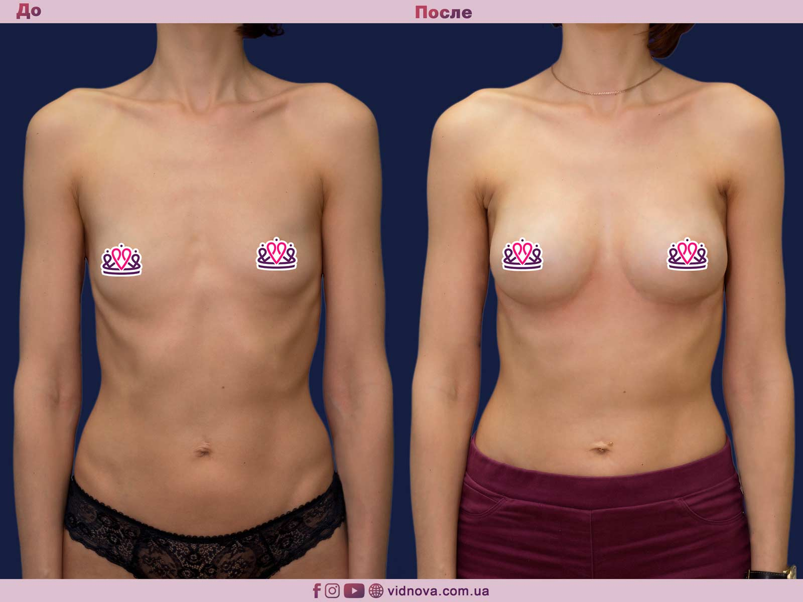 Увеличение груди: Фото ДО и ПОСЛЕ - Пример №76-1 - Клиника Vidnova