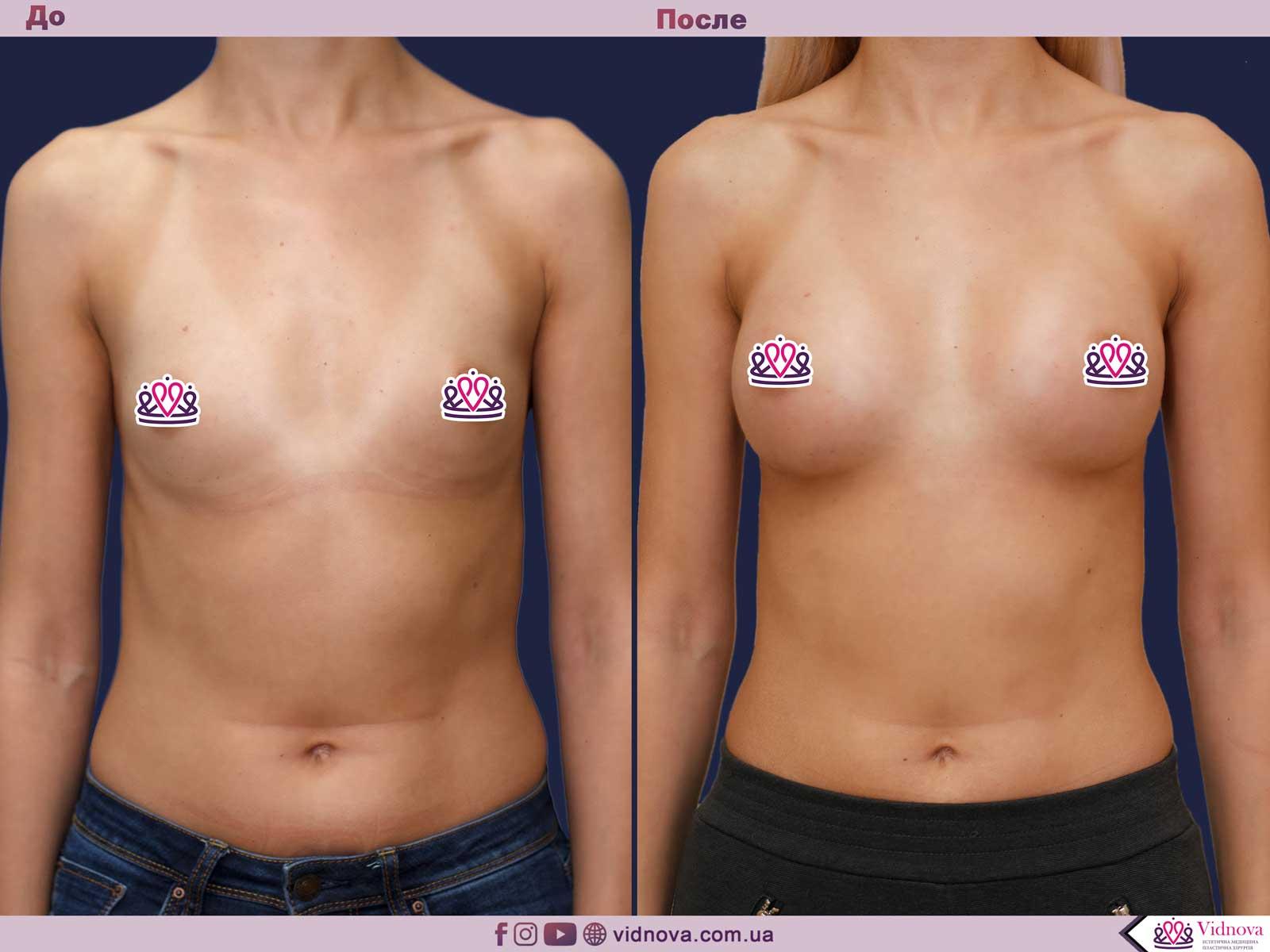 Увеличение груди: Фото ДО и ПОСЛЕ - Пример №73-1 - Клиника Vidnova