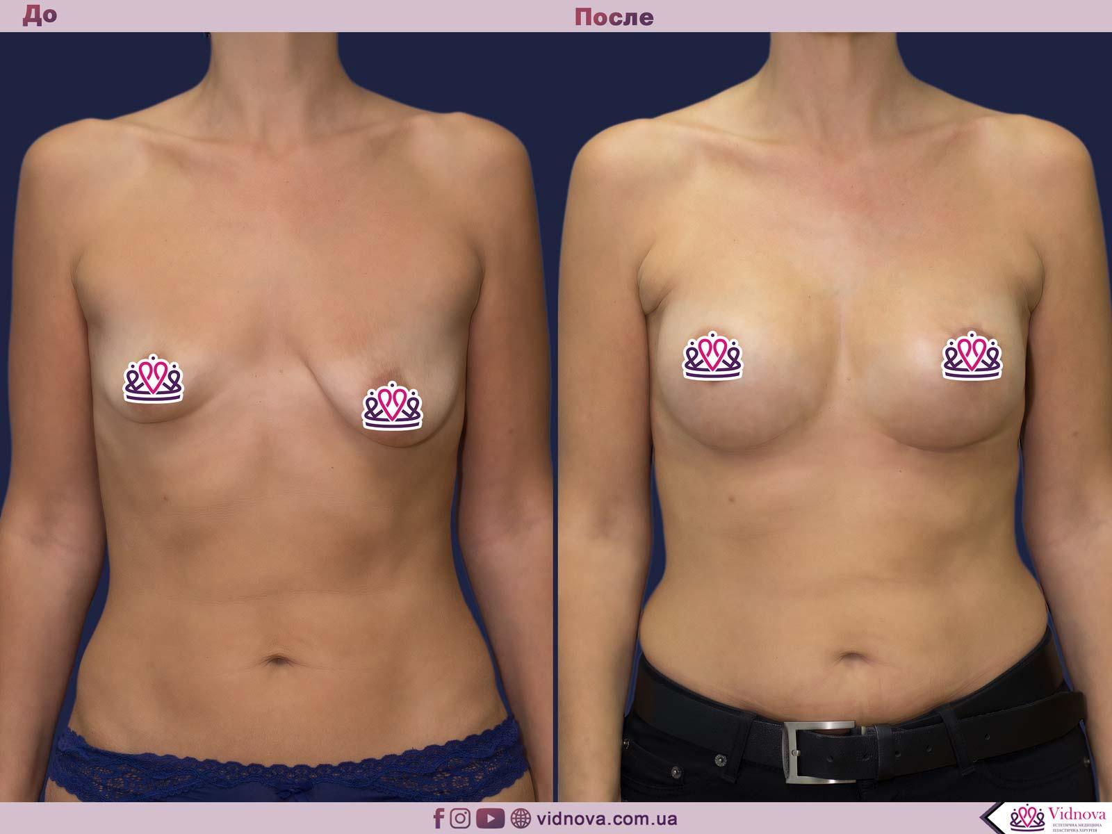Увеличение груди: Фото ДО и ПОСЛЕ - Пример №68-1 - Клиника Vidnova