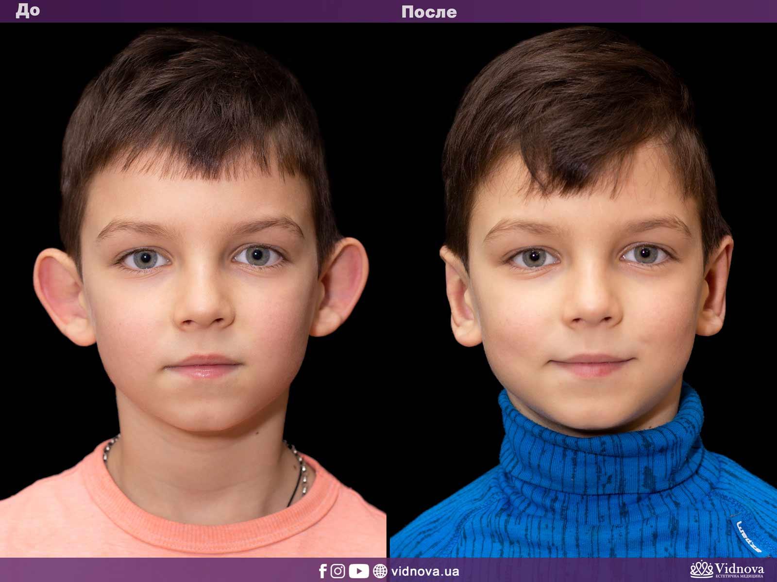 Отопластика: Фото До и После - Пример №4-1 - Клиника Vidnova