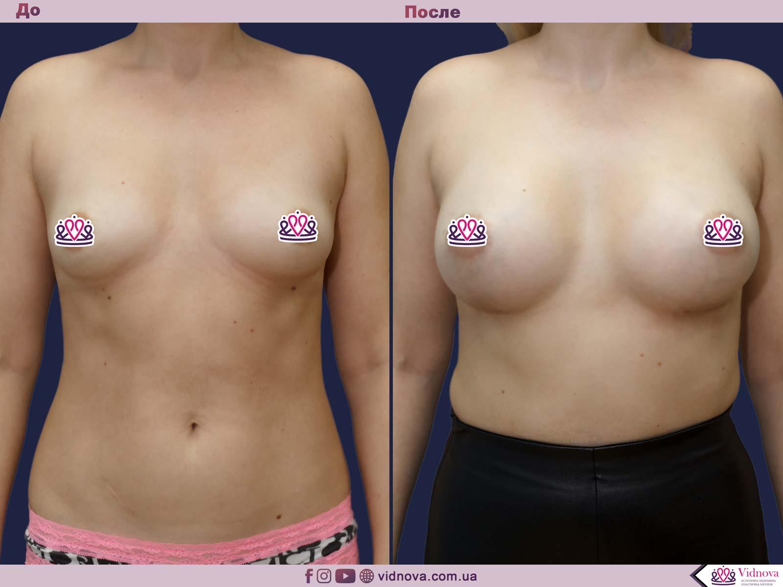 Увеличение груди: Фото ДО и ПОСЛЕ - Пример №71-1 - Клиника Vidnova