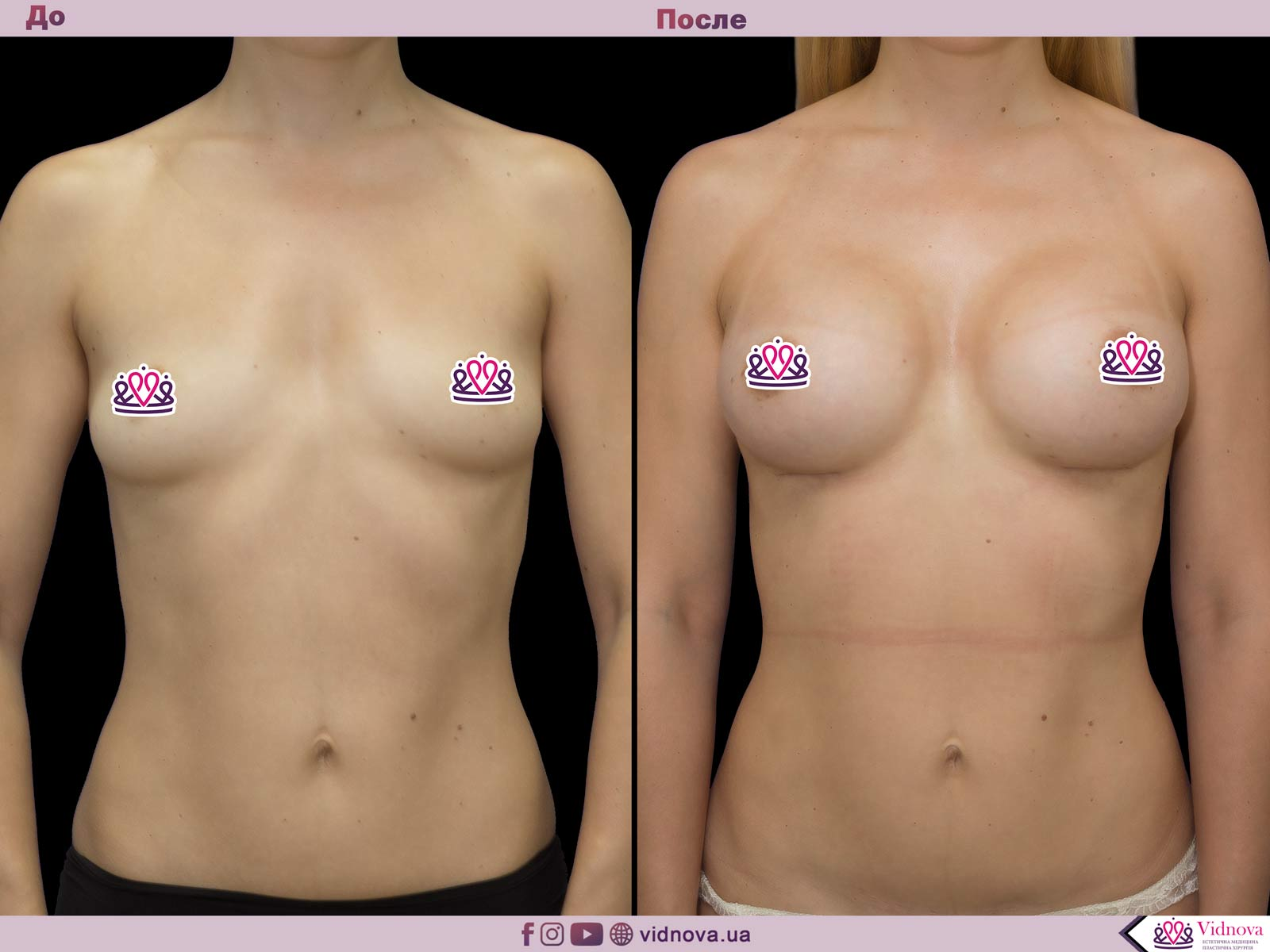 Увеличение груди: Фото ДО и ПОСЛЕ - Пример №54-1 - Клиника Vidnova