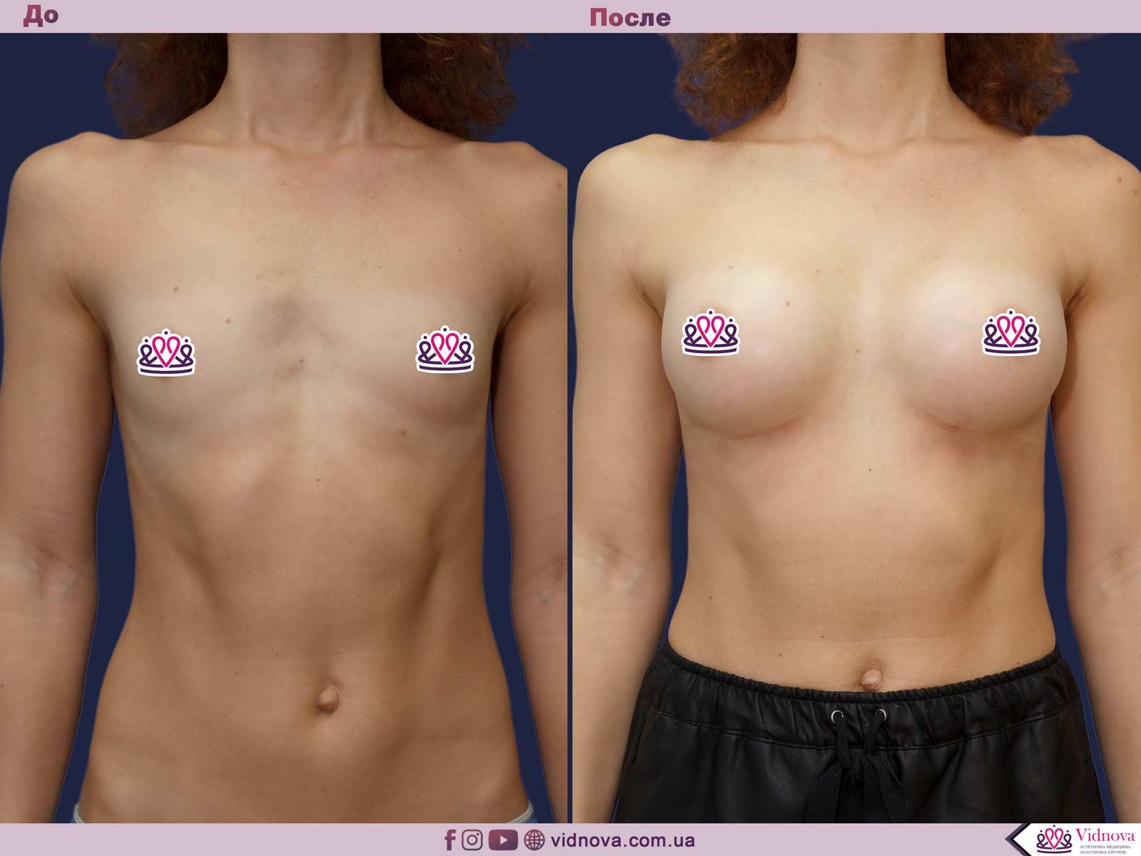 Увеличение груди: Фото ДО и ПОСЛЕ - Пример №70-1 - Клиника Vidnova