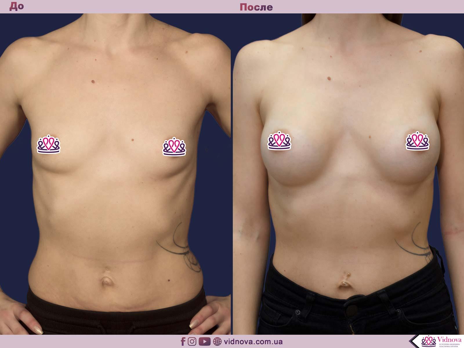 Увеличение груди: Фото ДО и ПОСЛЕ - Пример №62-1 - Клиника Vidnova