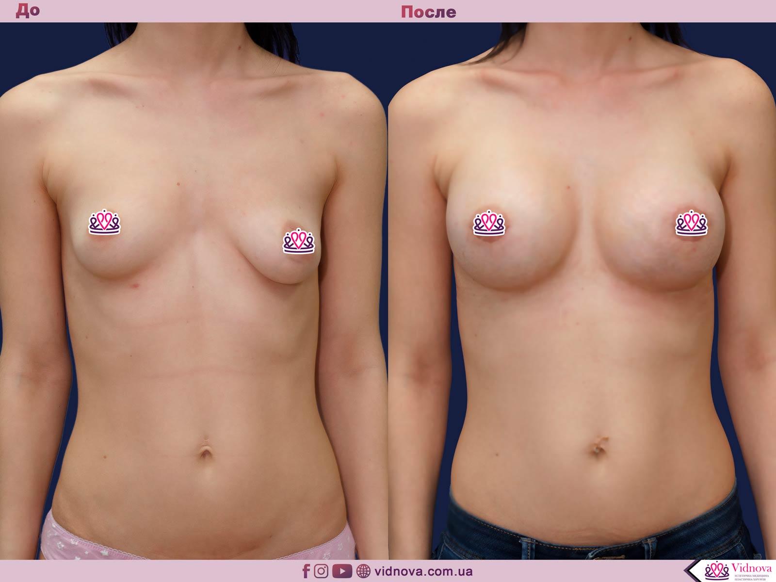 Подтяжка груди: Фото ДО и ПОСЛЕ - Пример №23-1 - Клиника Vidnova