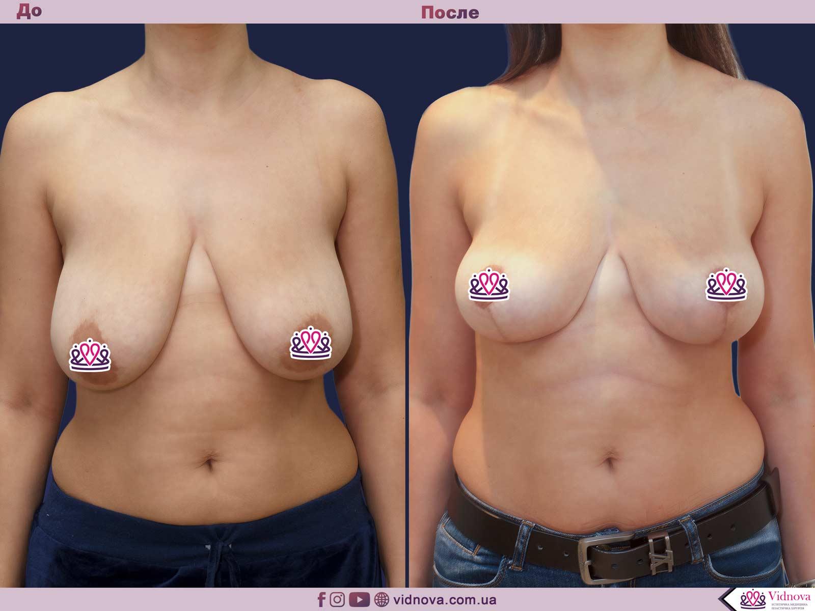 Подтяжка груди: Фото ДО и ПОСЛЕ - Пример №24-1 - Клиника Vidnova
