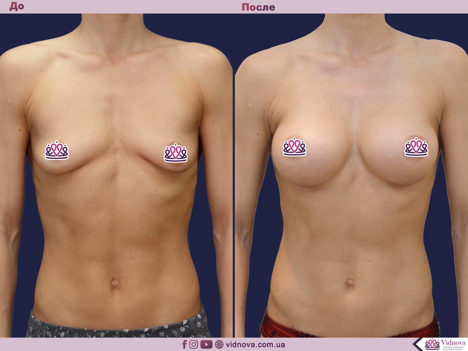 Увеличение груди: Фото ДО и ПОСЛЕ - Пример №61-1 - Клиника Vidnova