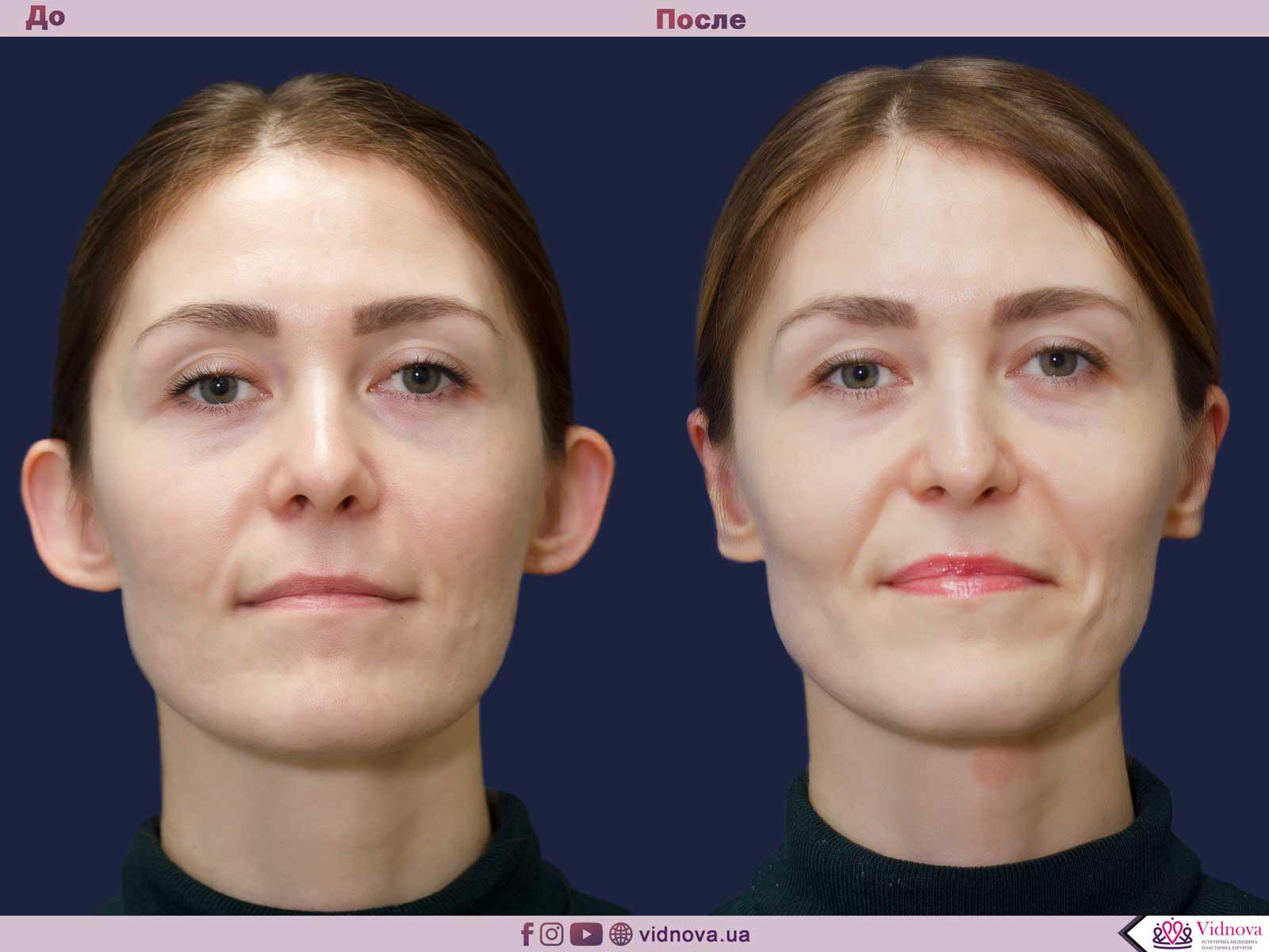 Отопластика: Фото До и После - Пример №7-1 - Клиника Vidnova