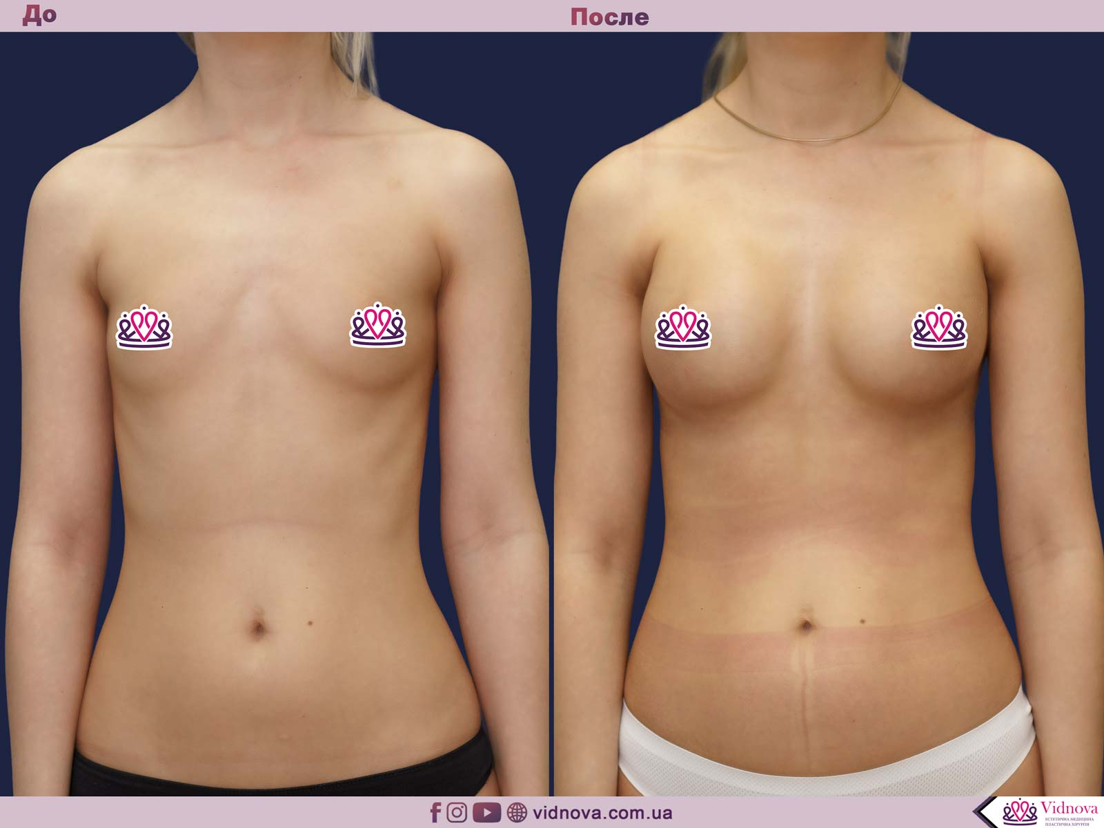 Увеличение груди: Фото ДО и ПОСЛЕ - Пример №57-1 - Клиника Vidnova