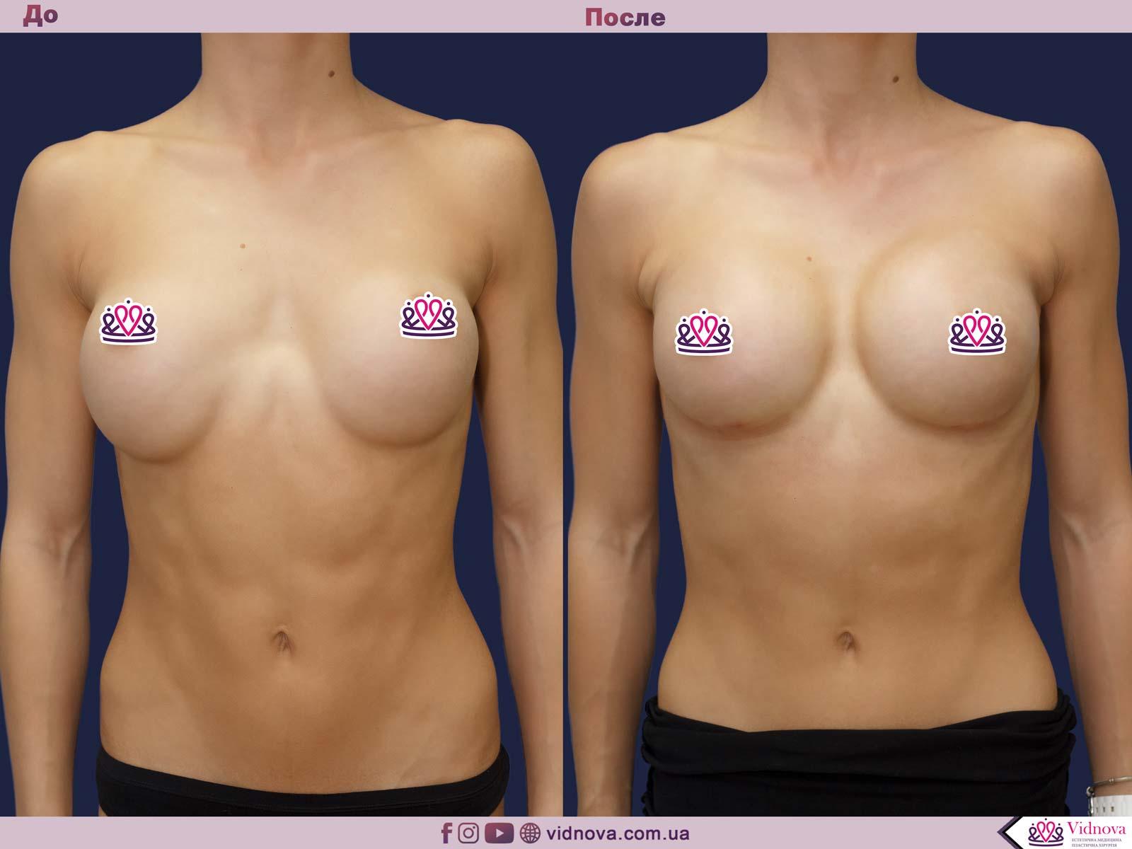 Увеличение груди: Фото ДО и ПОСЛЕ - Пример №64-1 - Клиника Vidnova