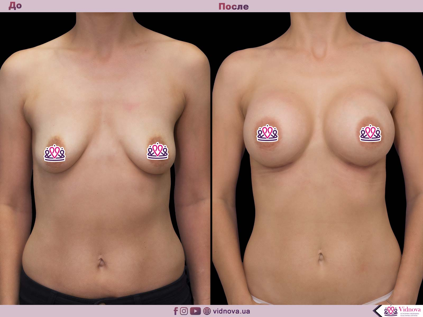 Увеличение груди: Фото ДО и ПОСЛЕ - Пример №47-1 - Клиника Vidnova