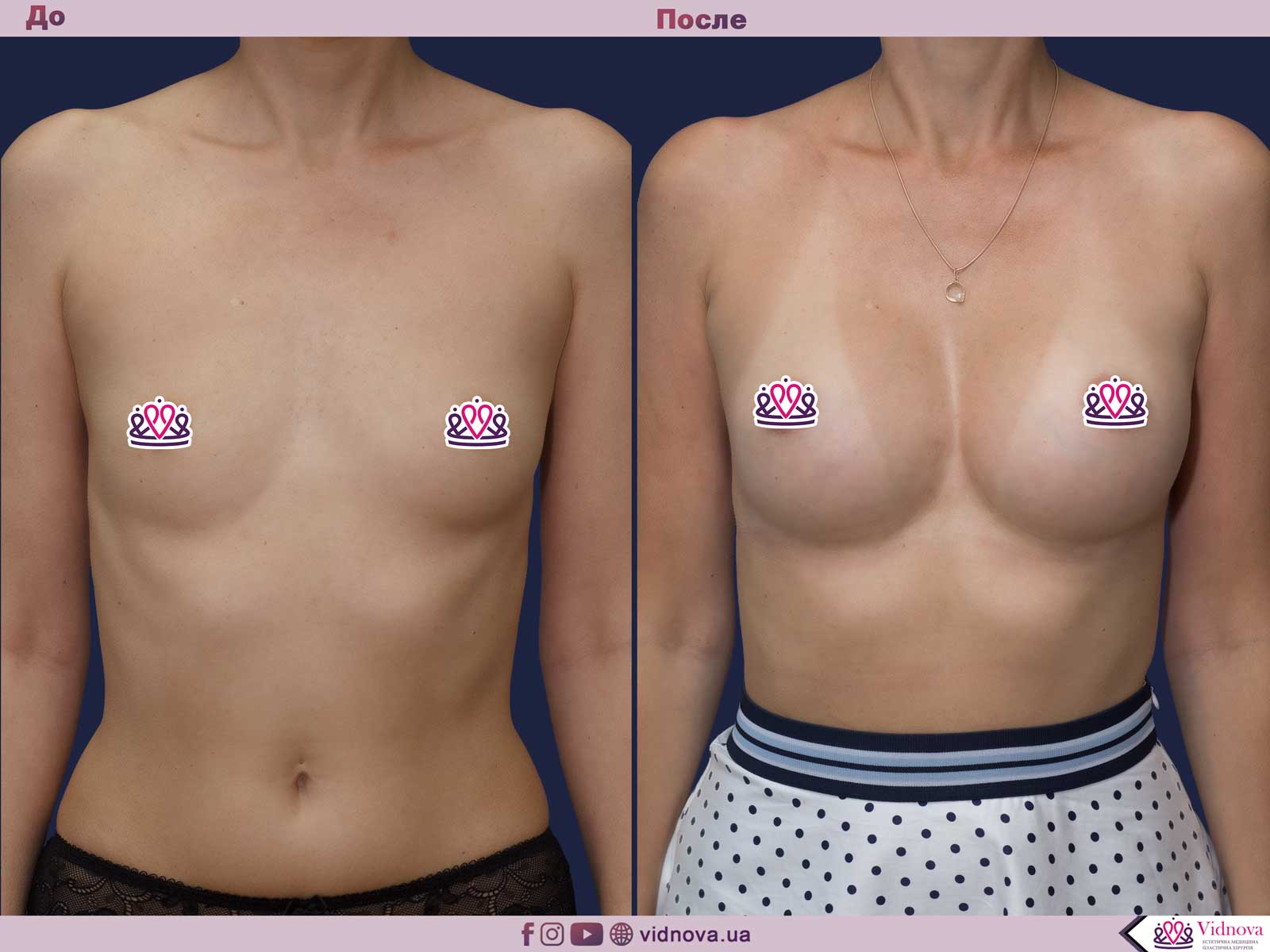 Увеличение груди: Фото ДО и ПОСЛЕ - Пример №53-1 - Клиника Vidnova