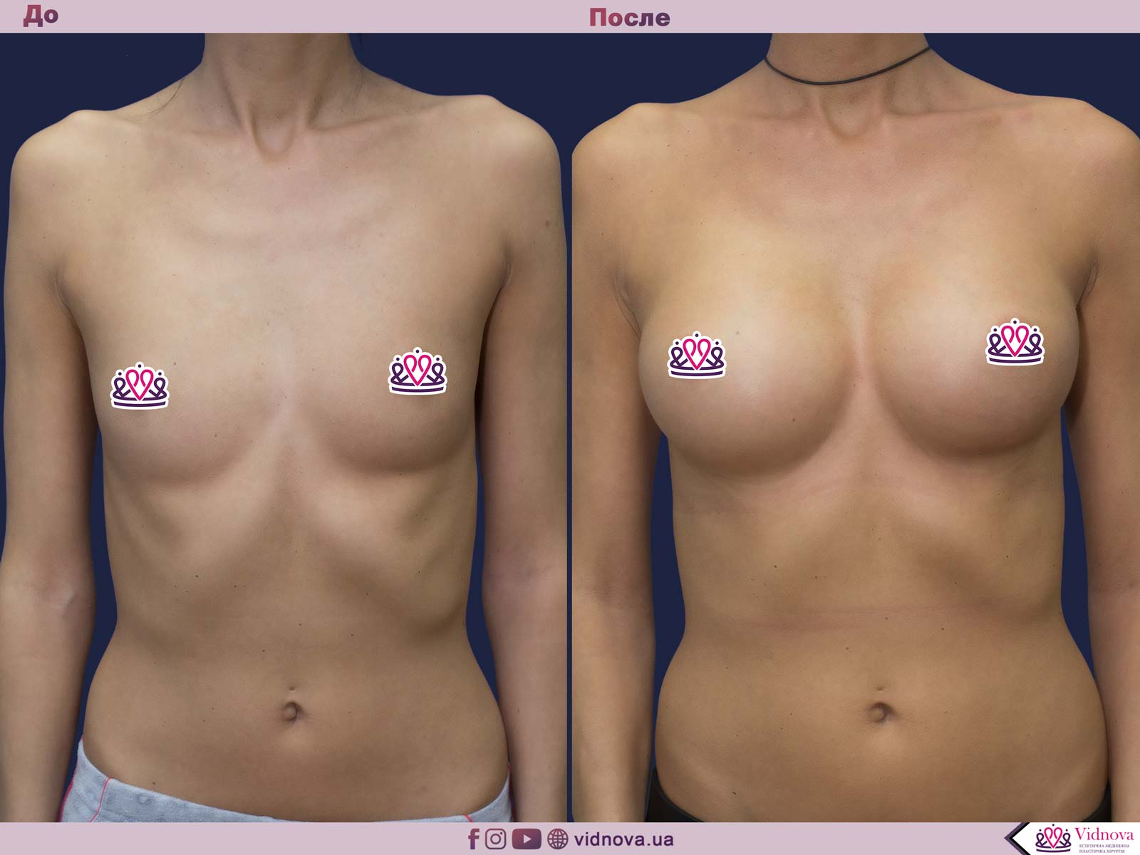 Увеличение груди: Фото ДО и ПОСЛЕ - Пример №60-1 - Клиника Vidnova
