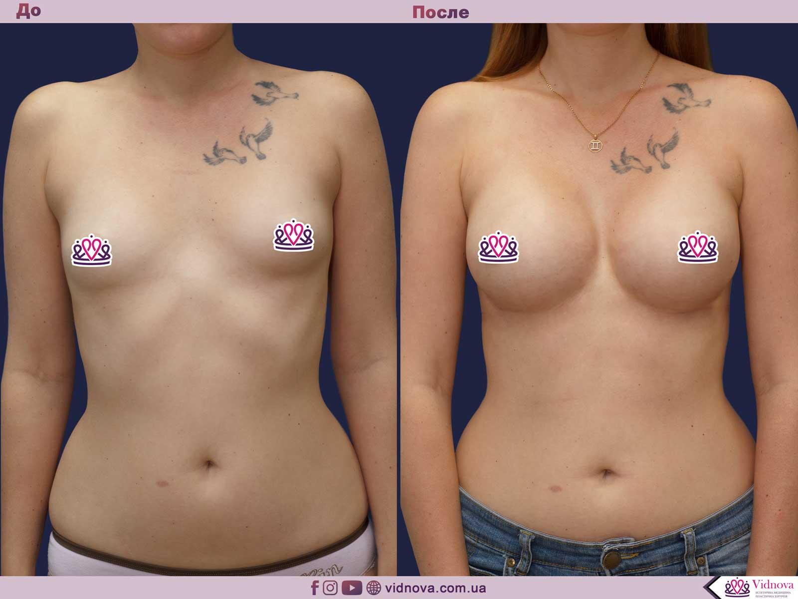 Увеличение груди: Фото ДО и ПОСЛЕ - Пример №55-1 - Клиника Vidnova