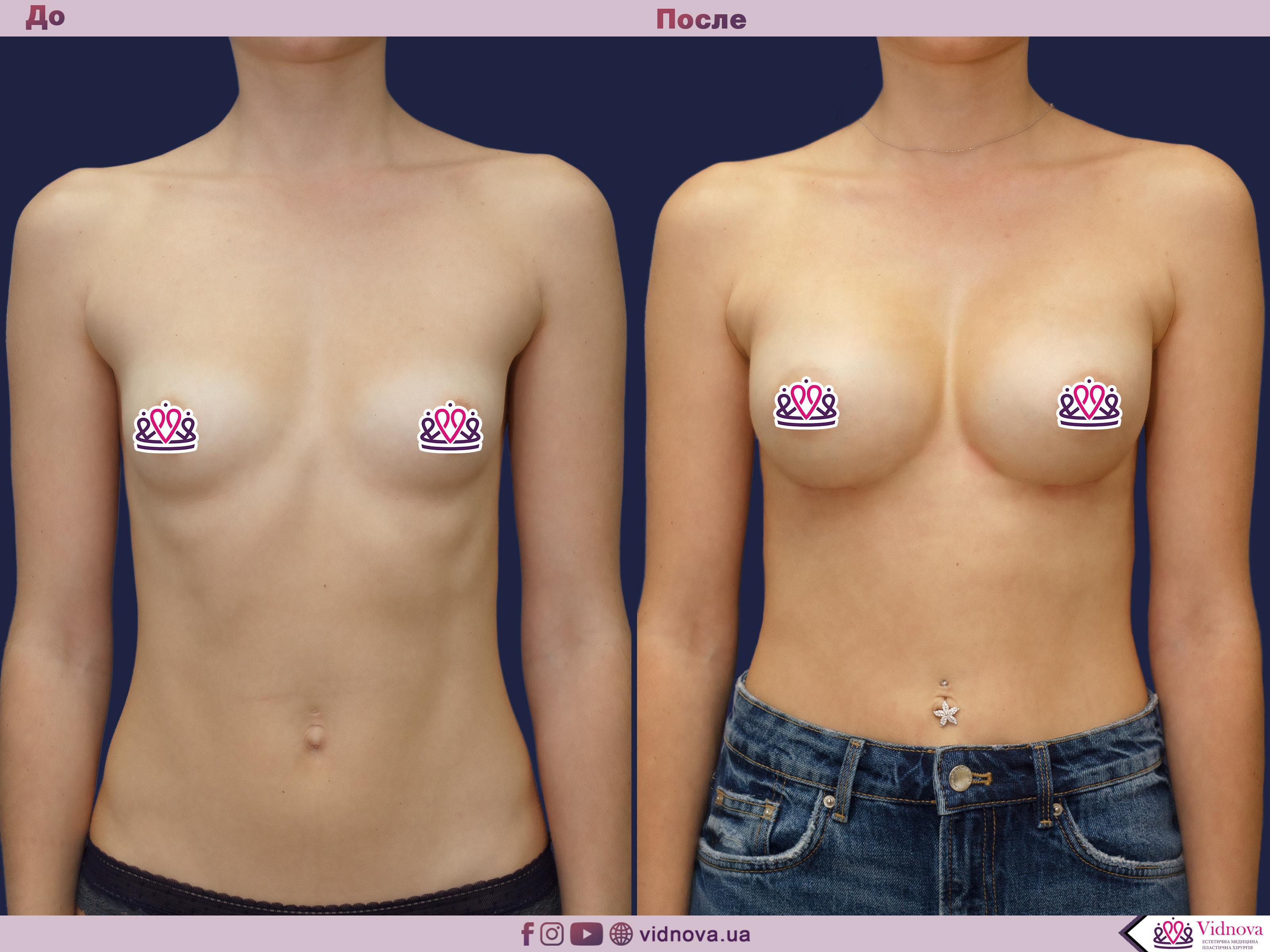 Увеличение груди: Фото ДО и ПОСЛЕ - Пример №56-1 - Клиника Vidnova