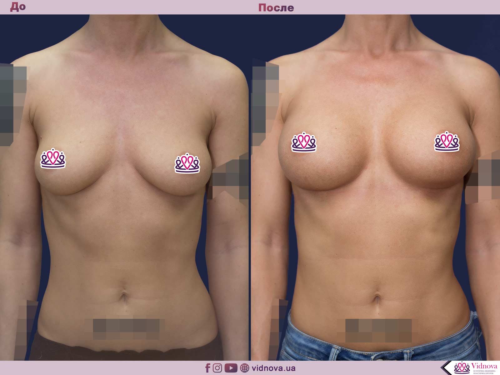 Увеличение груди: Фото ДО и ПОСЛЕ - Пример №51-1 - Клиника Vidnova