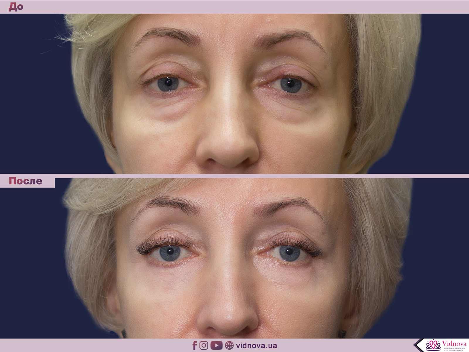 Блефаропластика: Фото До и После - Пример №42-1 - Клиника Vidnova