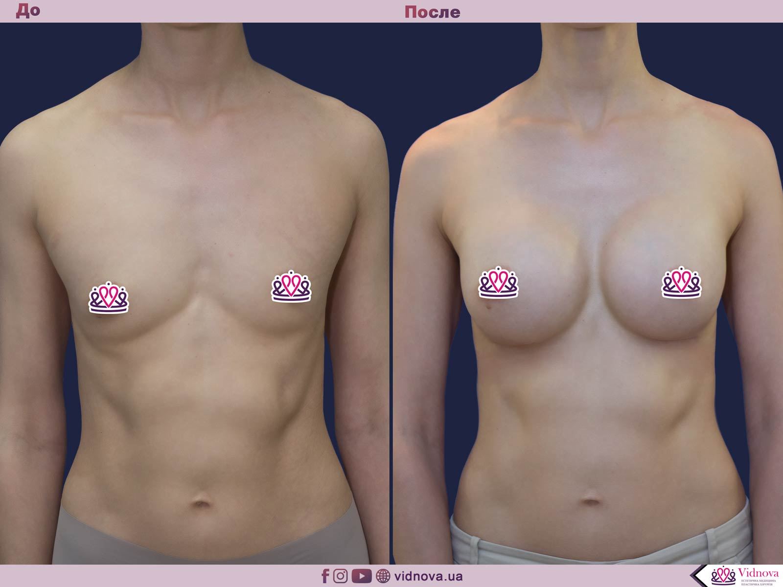 Увеличение груди: Фото ДО и ПОСЛЕ - Пример №52-1 - Клиника Vidnova