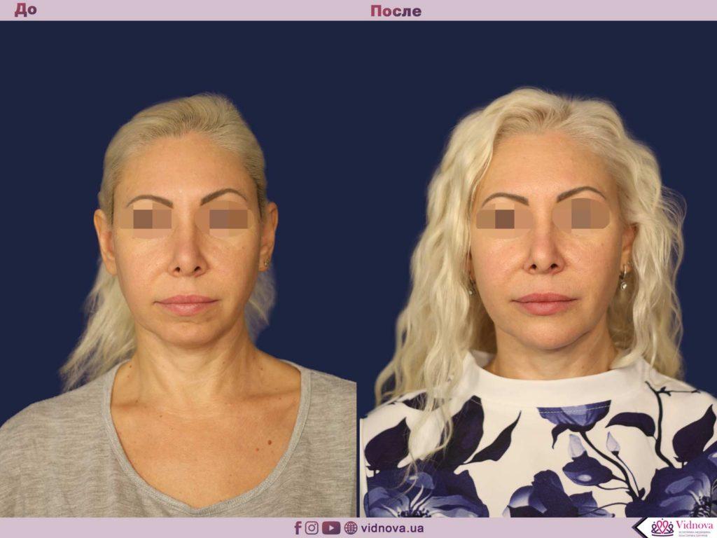 Эндопротезирование подбородка 1 67 1024x768 - клиника VIdnova