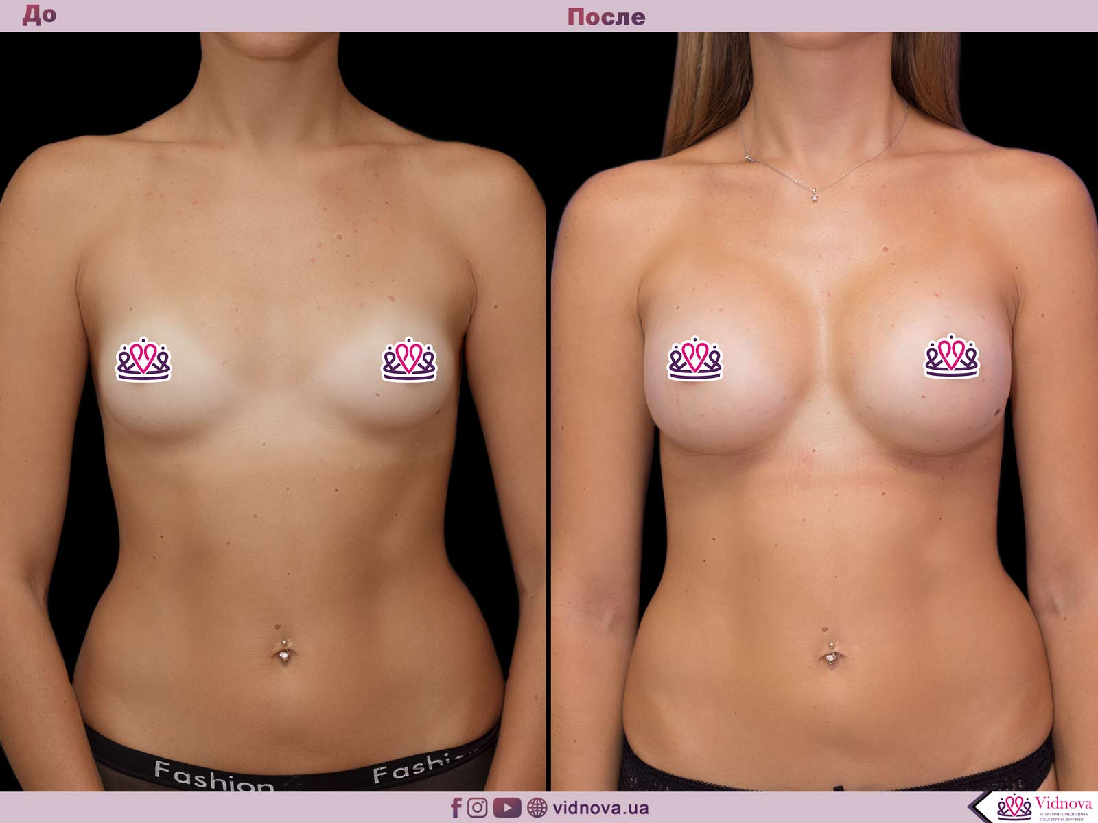Увеличение груди: Фото ДО и ПОСЛЕ - Пример №44-1 - Клиника Vidnova