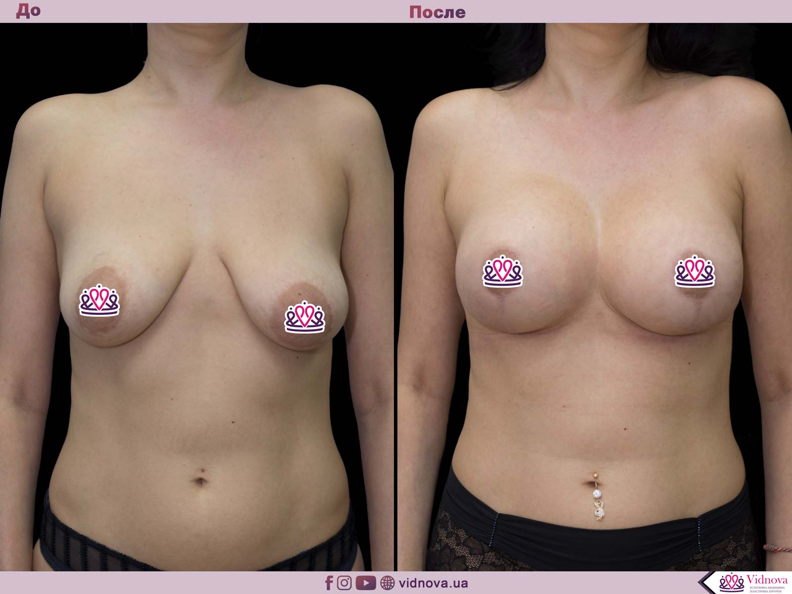 Подтяжка груди: Фото ДО и ПОСЛЕ - Пример №22-1 - Клиника Vidnova