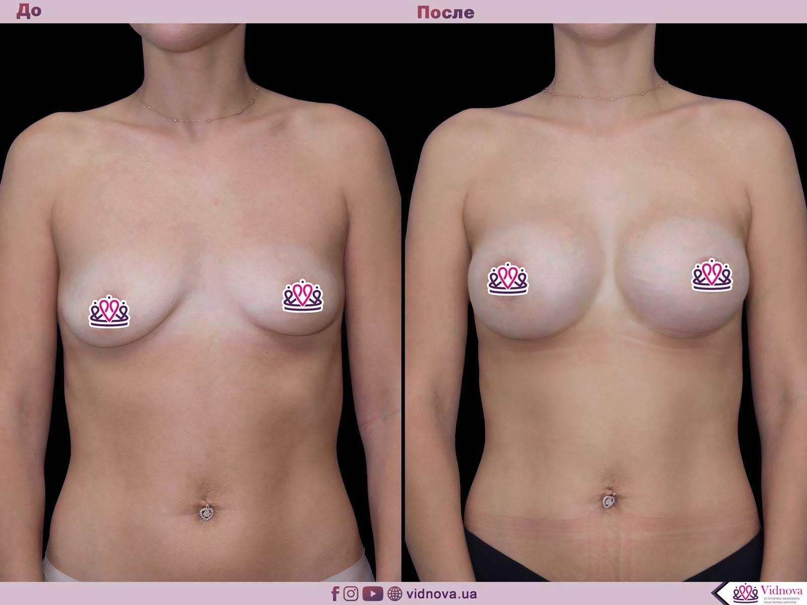 Увеличение груди: Фото ДО и ПОСЛЕ - Пример №49-1 - Клиника Vidnova