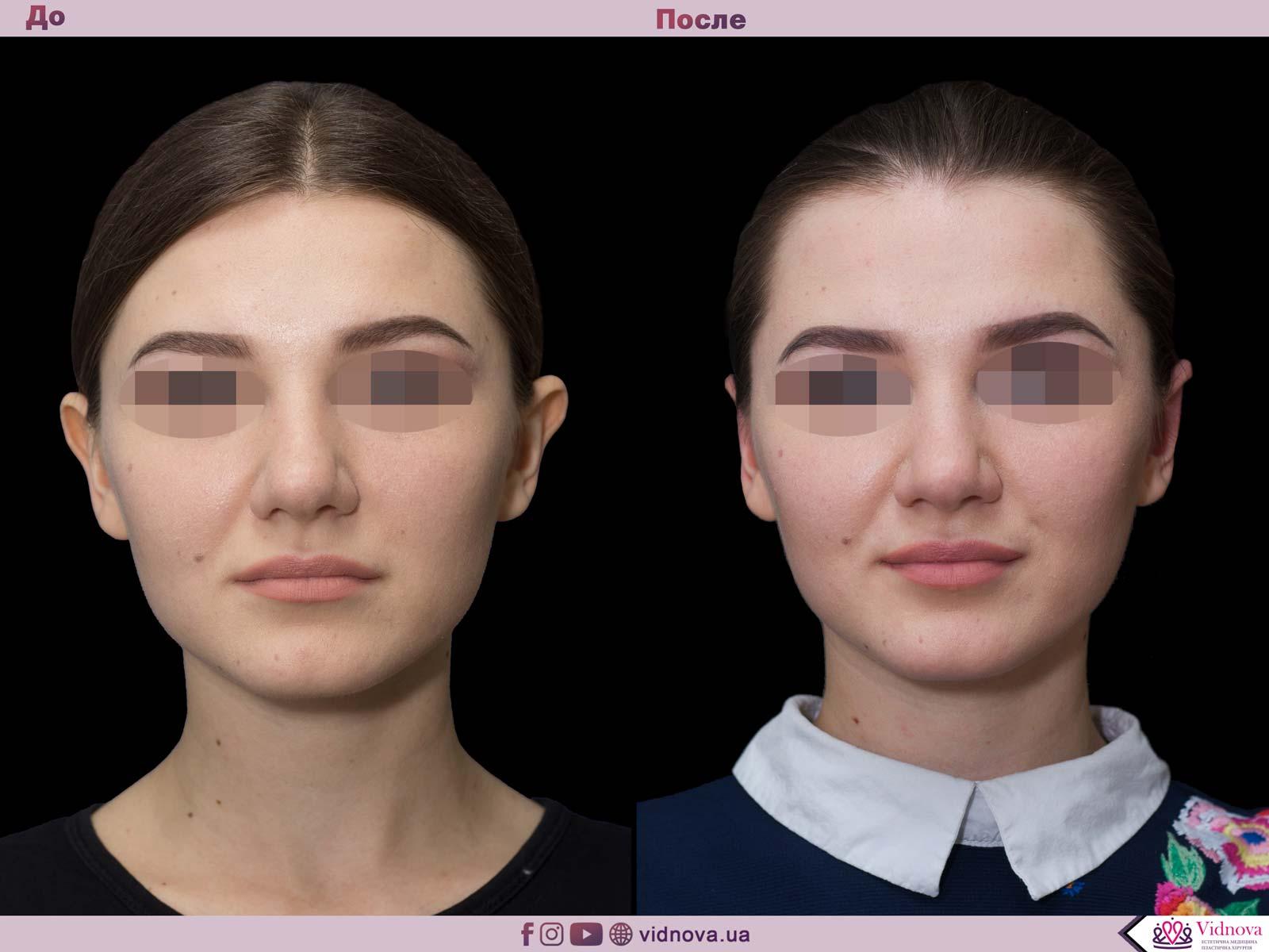 Отопластика: Фото До и После - Пример №6-1 - Клиника Vidnova