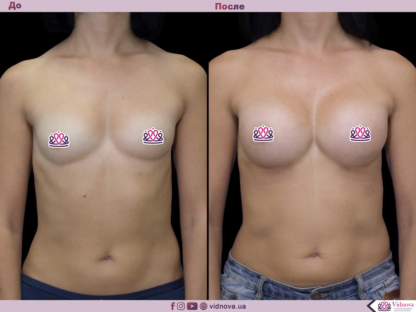 Увеличение груди: Фото ДО и ПОСЛЕ - Пример №48-1 - Клиника Vidnova