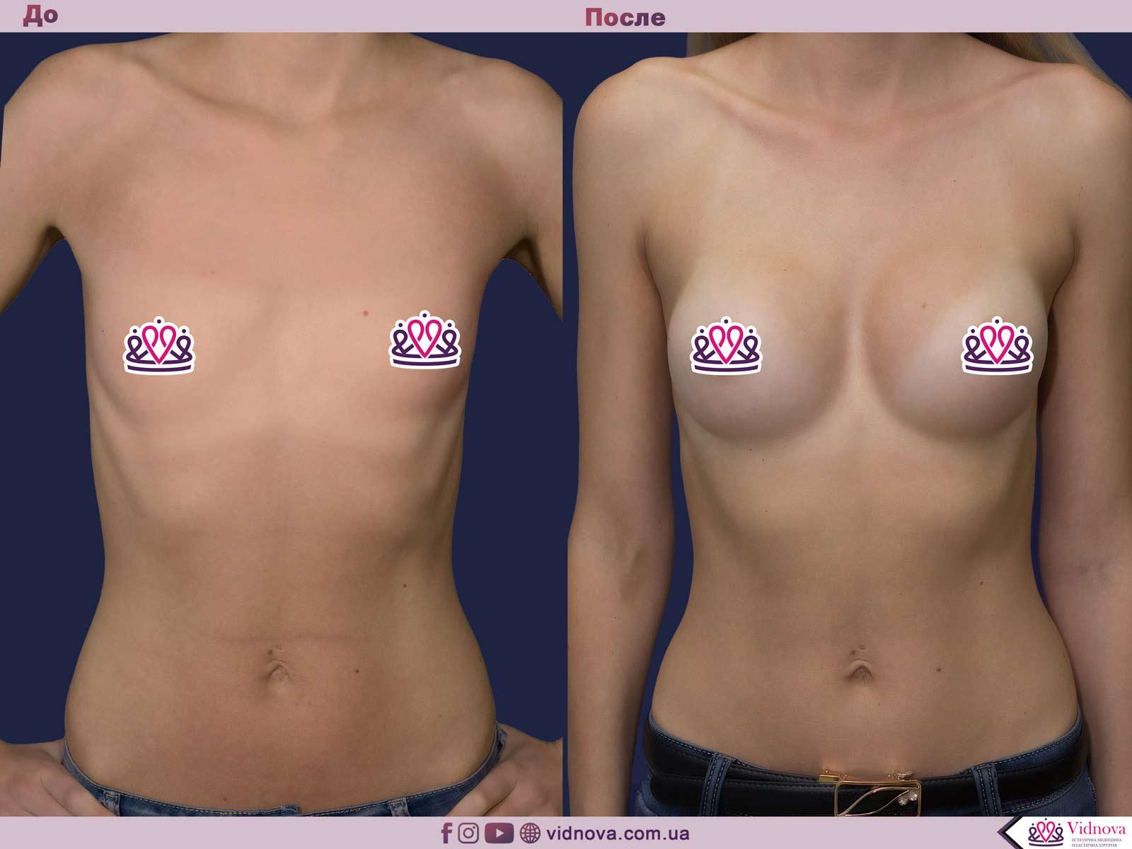 Увеличение груди: Фото ДО и ПОСЛЕ - Пример №83-1 - Клиника Vidnova
