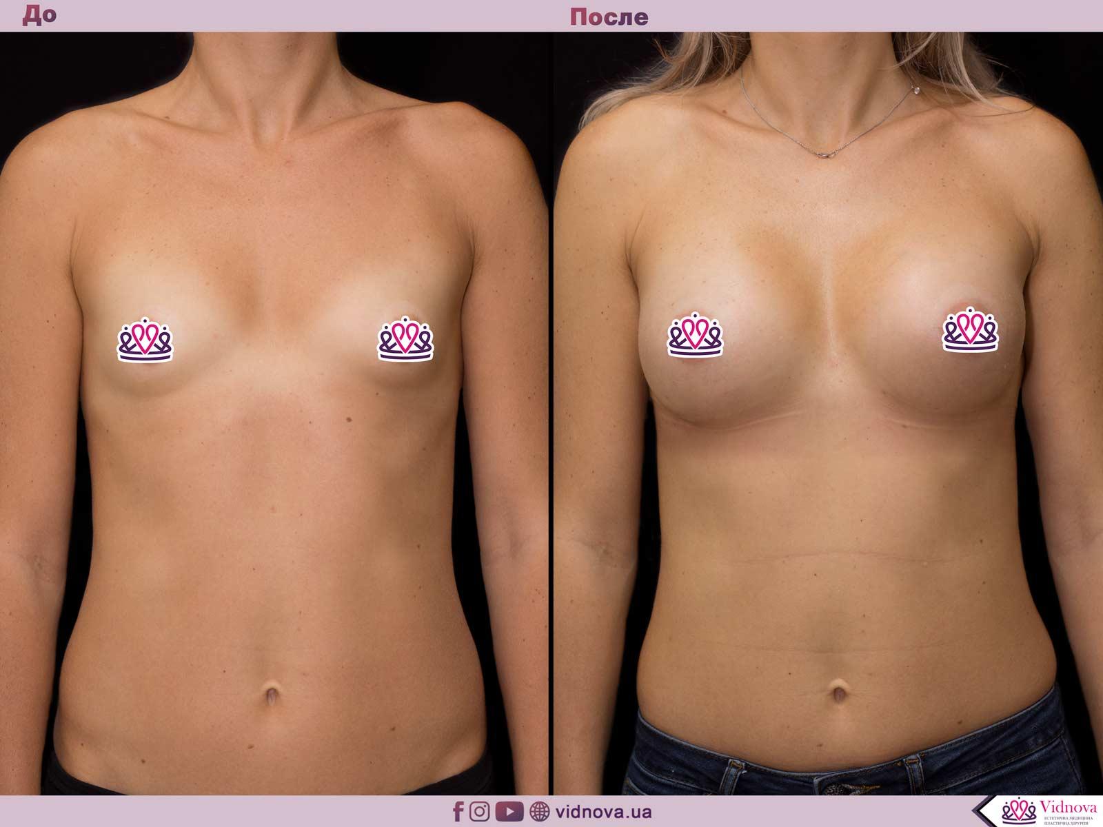Увеличение груди: Фото ДО и ПОСЛЕ - Пример №46-1 - Клиника Vidnova