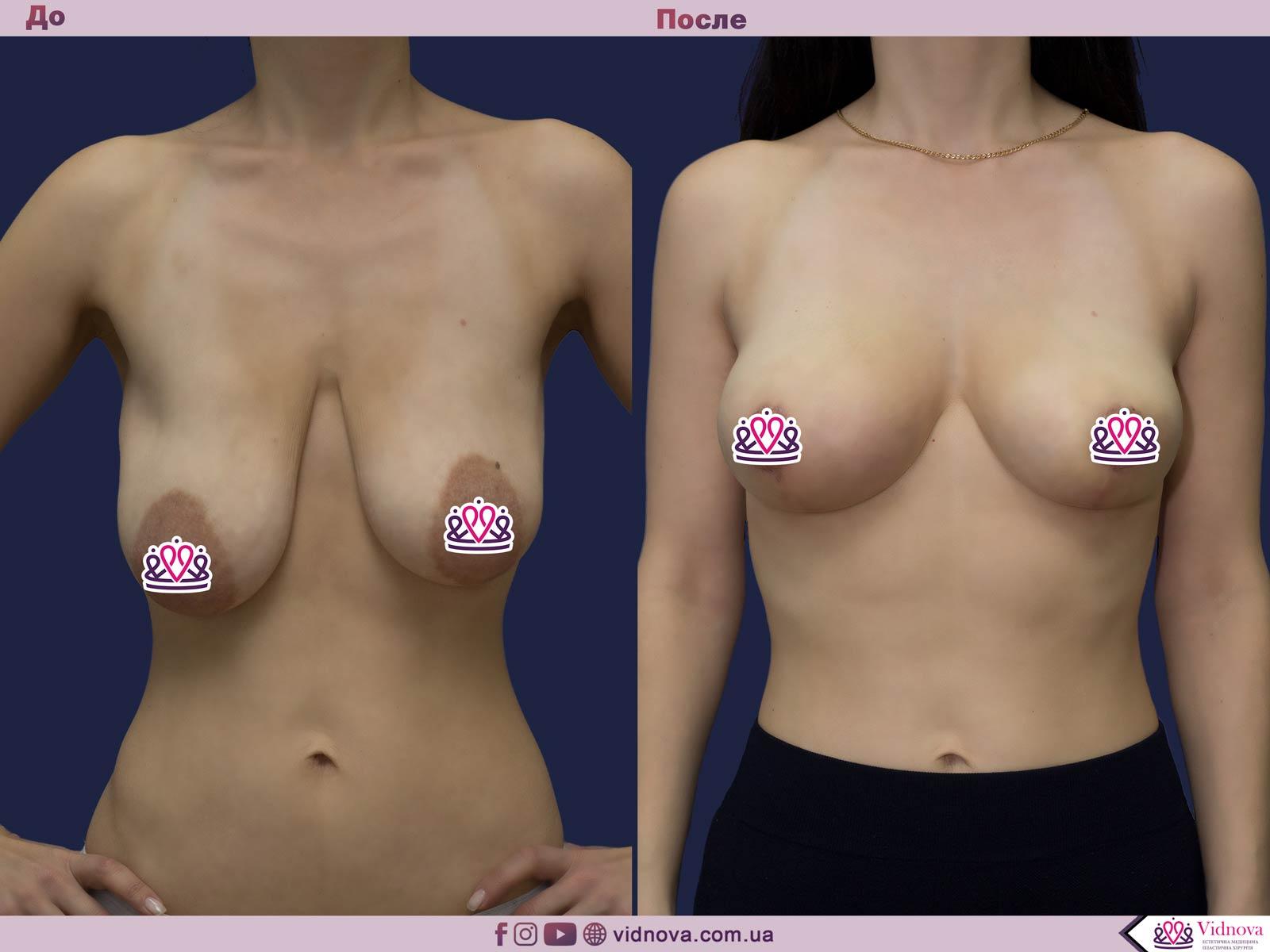 Подтяжка груди: Фото ДО и ПОСЛЕ - Пример №26-1 - Клиника Vidnova