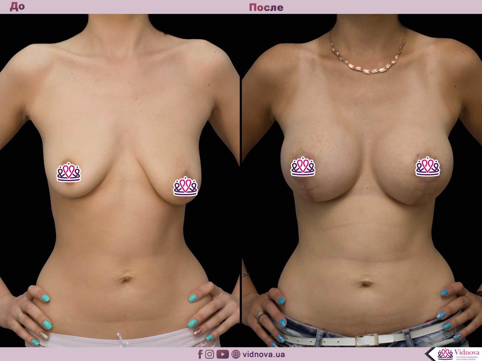 Подтяжка груди: Фото ДО и ПОСЛЕ - Пример №21-1 - Клиника Vidnova